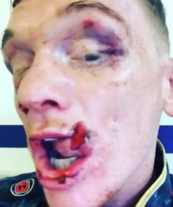 Boxing: Mason Cartwright Displays Gruesome Facial Injuries Suffered In His Fight against Darren Tetley - Cartwright