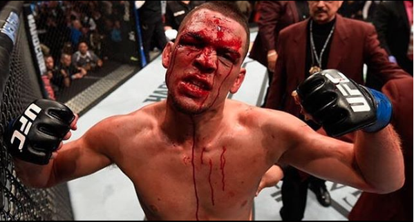 UFC: Clay Guida files police complaint for 'alleged' battery against Nate Diaz - nate diaz