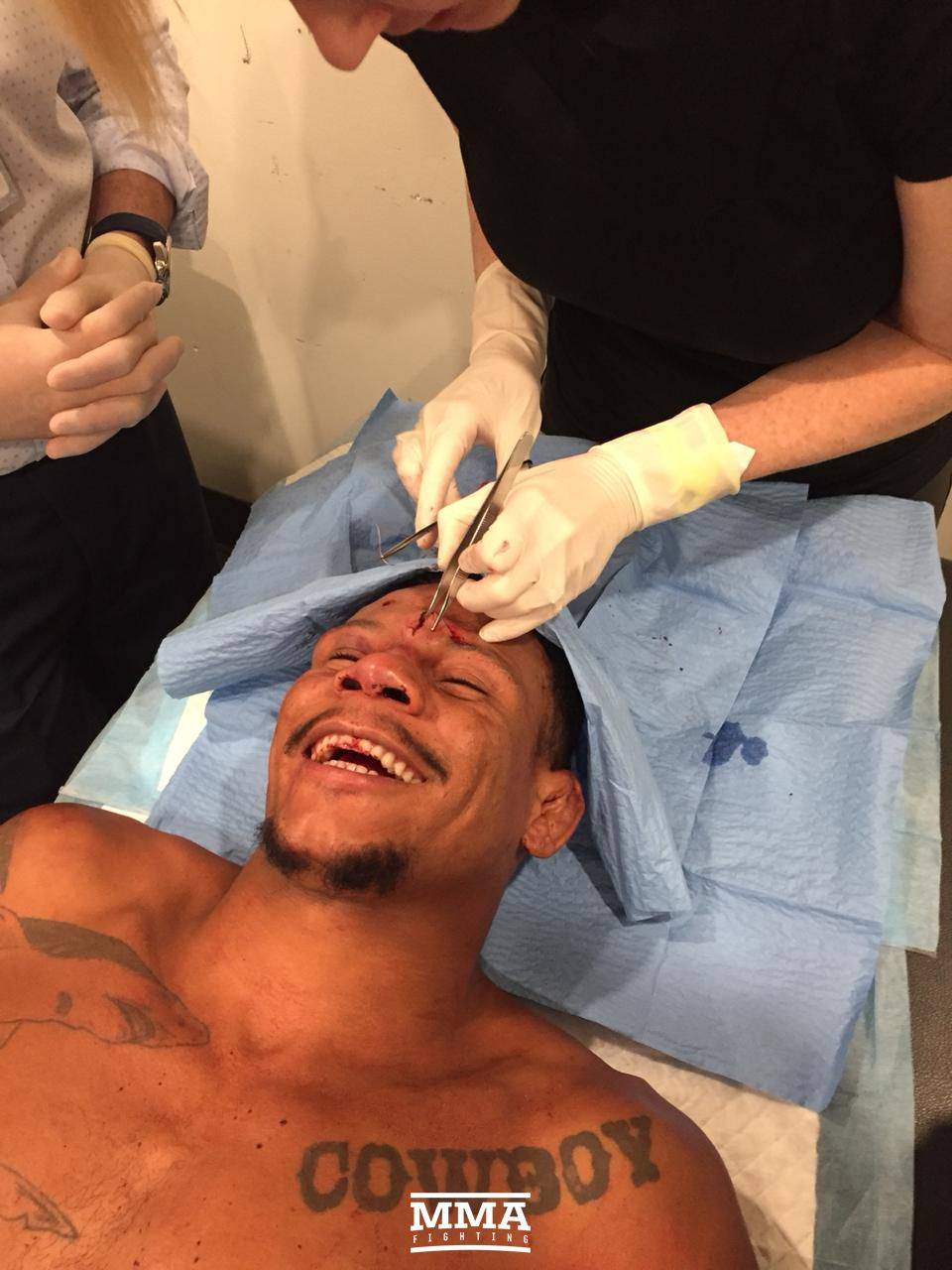 After suffering a nasty cut against Gunnar Nelson, Cowboy Oliveira receives 29 stitches...with a smile on his face -