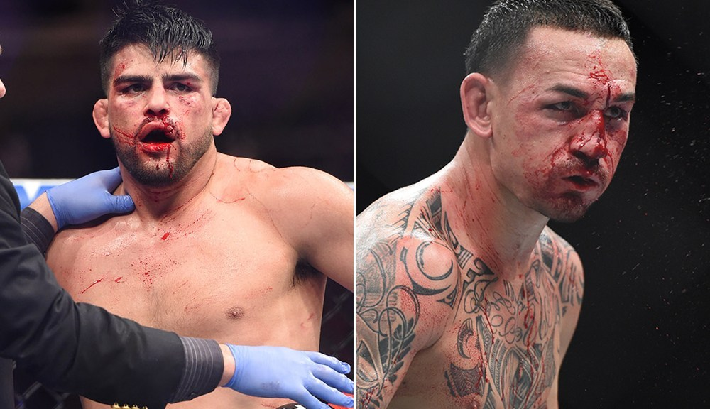 Max Holloway, Kelvin Gastelum out indefinitely after UFC 236 batterings - Holloway