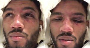 A reflective Kevin Lee reacts to RDA loss backstage - Lee