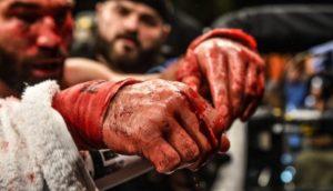 Artem Lobov wants to fight boxer Amir Khan in BRAVE - Lobov