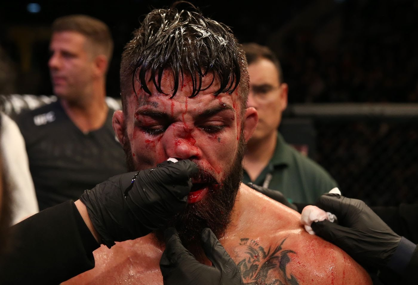 Twitter reacts to Mike Perry's gruesome broken nose after Vicente Luque fight - Mike