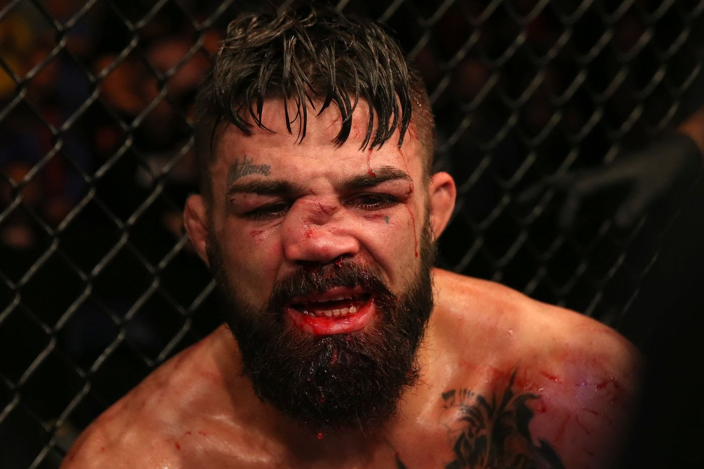 Mike Perry out for at least 6 months before contact to his nose - Perry