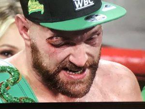Twitter reacts to Tyson Fury's victory over Otto Wallin in Las Vegas - Tyson