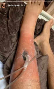 Photos: Graphic images of JDS' staph infection that ruled him out of Volkov fight - JDS