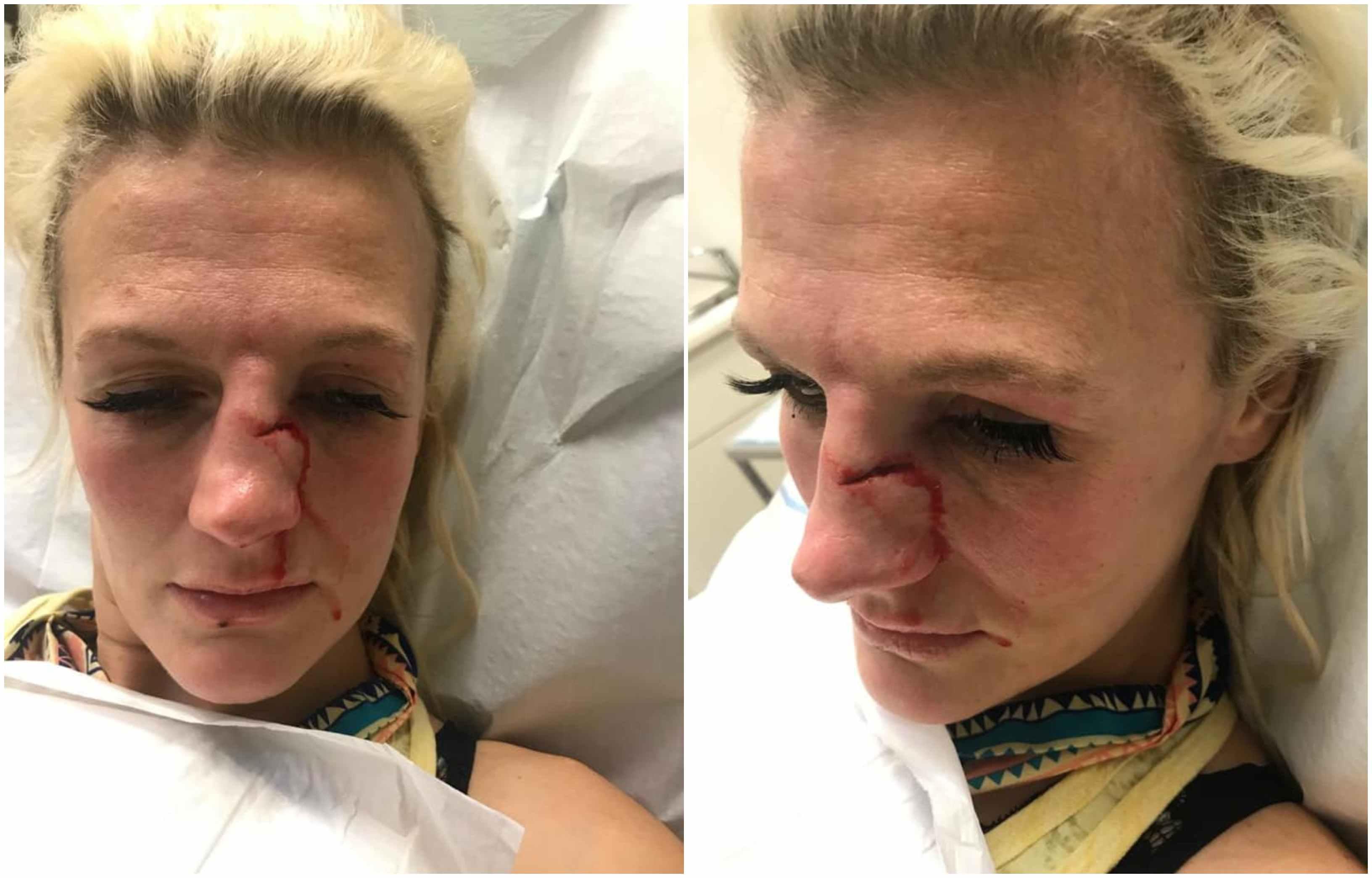 Former UFC women's bantamweight Cindy Dandois brutally beaten by ex-boyfriend - Cindy