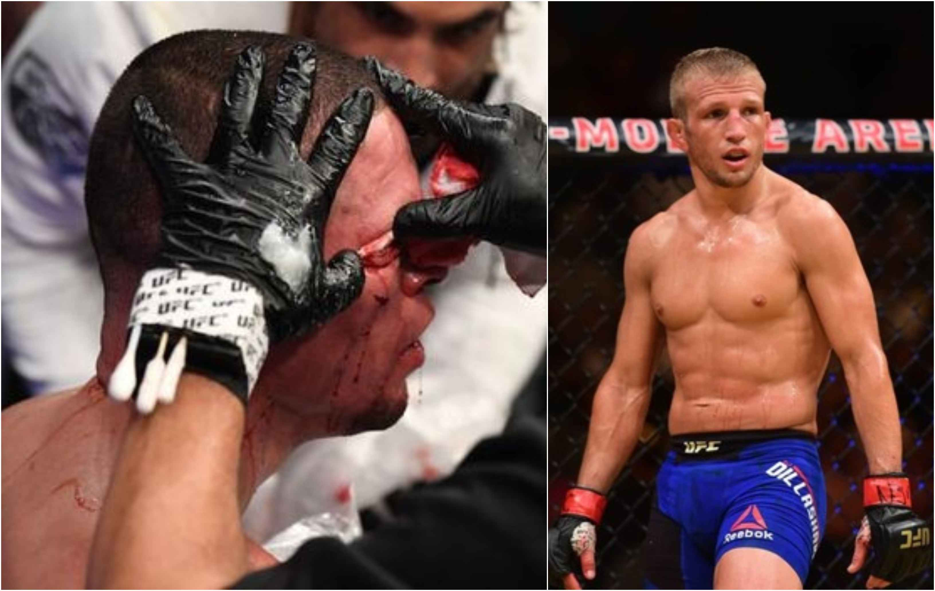 TJ Dillashaw agrees with the Nate Diaz vs Jorge Masvidal stoppage - Masvidal