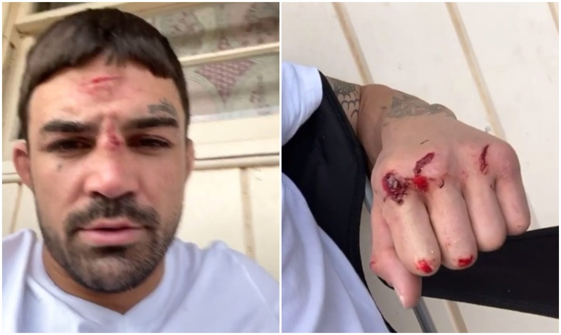 Cut and bloodied Mike Perry assures fans Mickey Gall fight will go ahead - Mike Perry