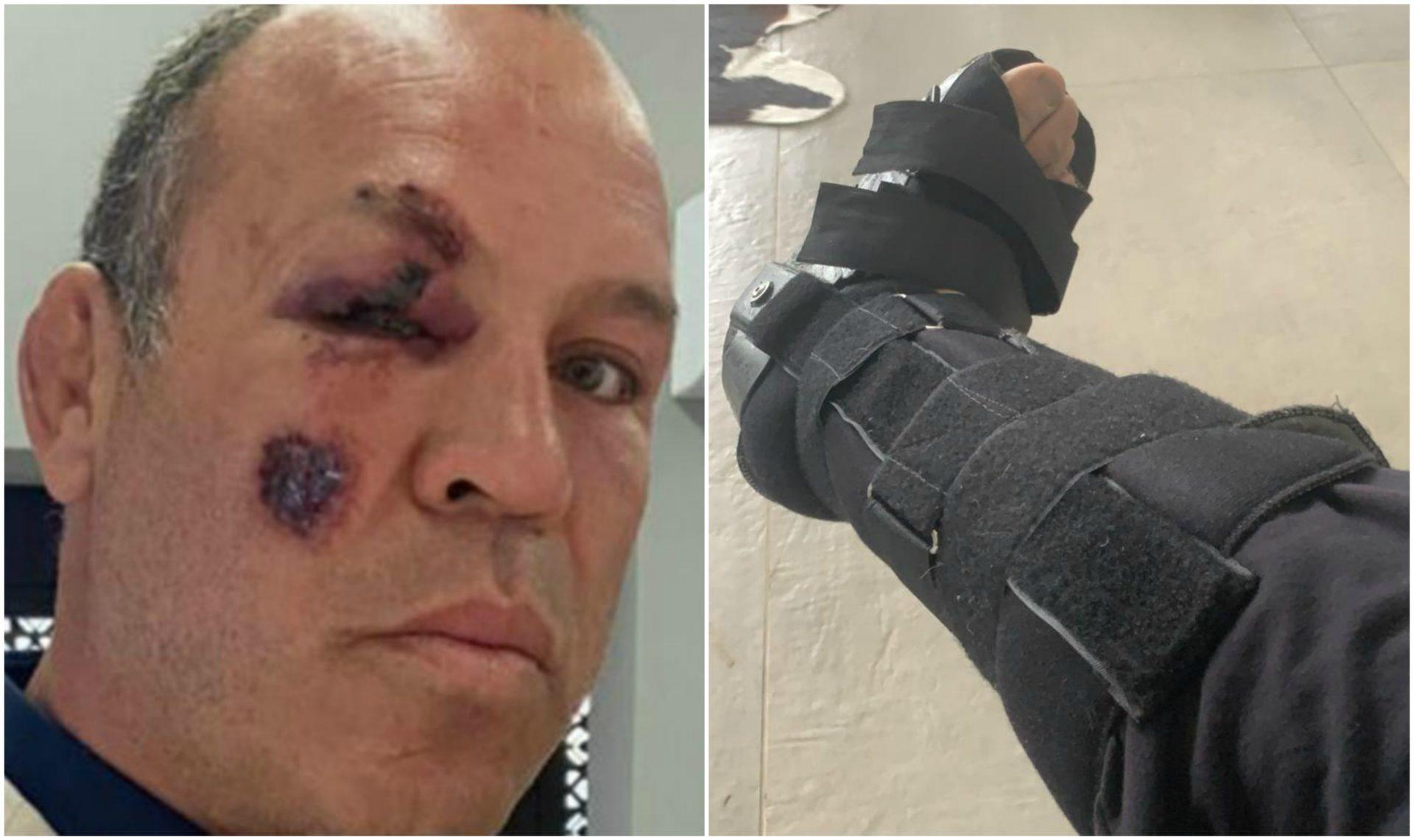 UFC veteran Wanderlei Silva survives bicycle accident after being hit by a car - Wanderlei Silva