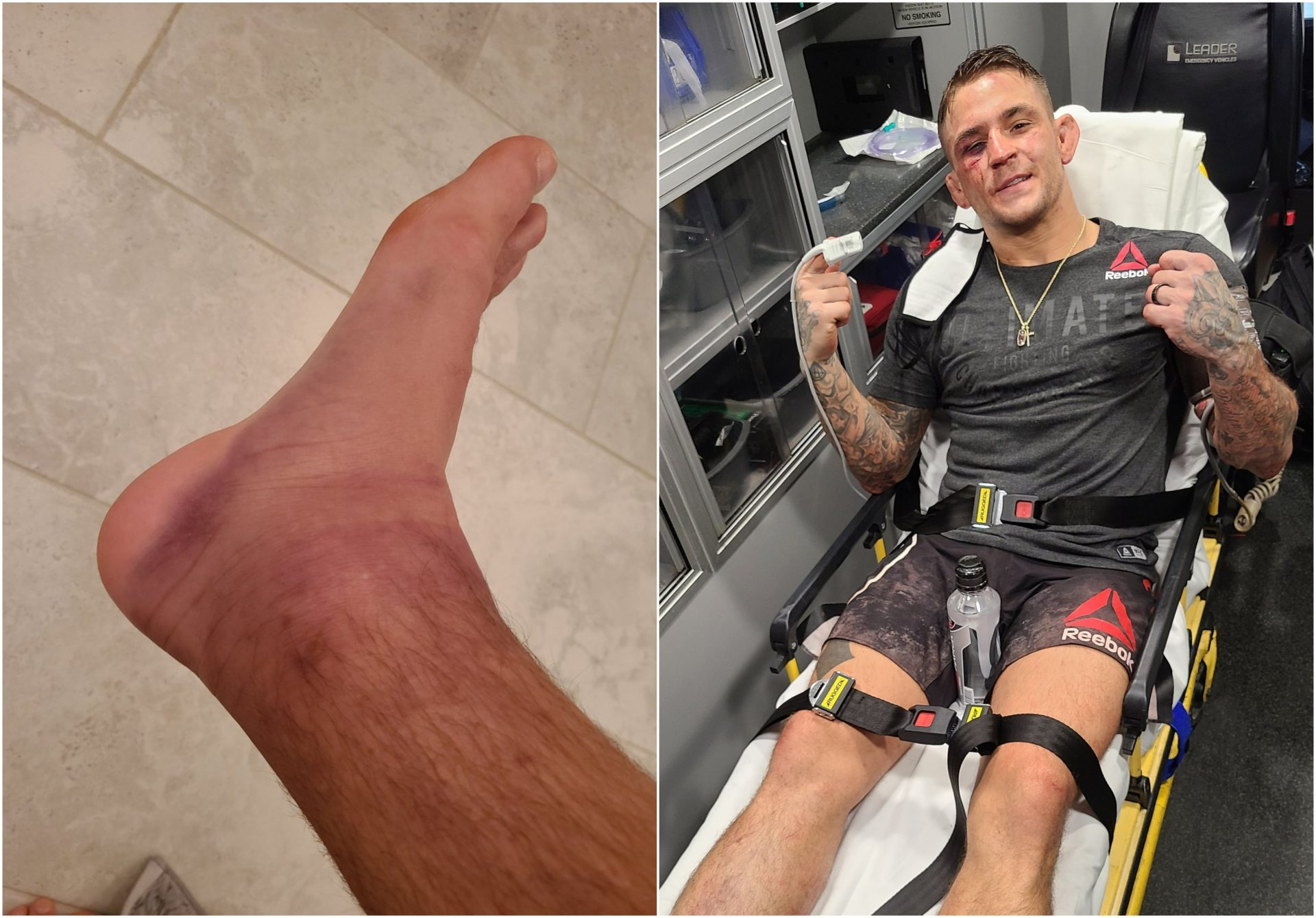 Dustin Poirier shows off after effects of brutal fight against Dan Hooker - Dustin Poirier