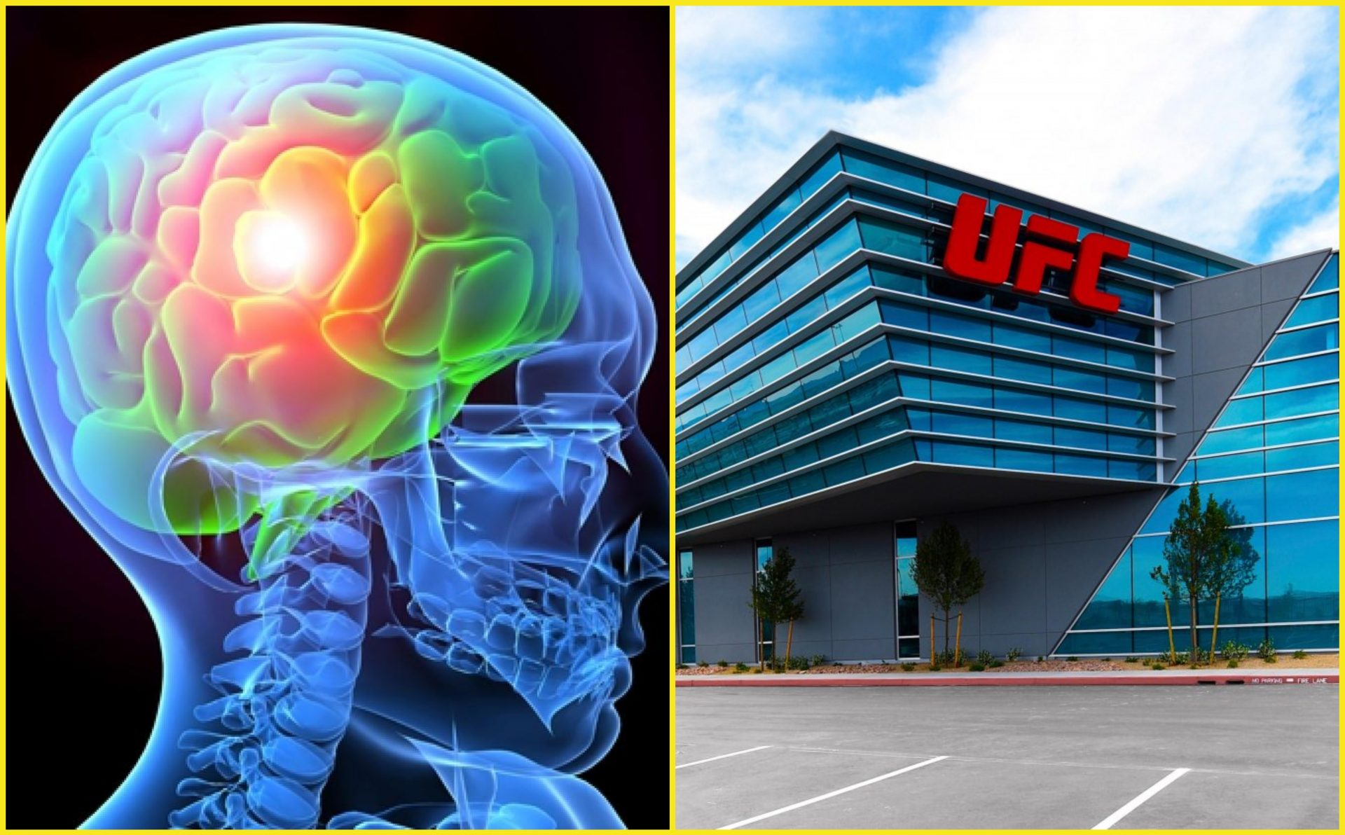 UFC contributes $1 Million towards brain research with Cleveland Clinic - Brain